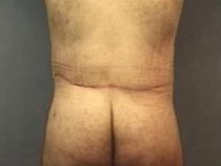 Body Lift Before & After Patient #2447