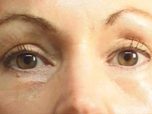 Eyelid Surgery Before & After Patient #2210