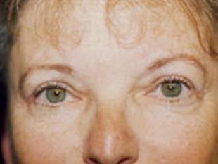 Eyelid Surgery Before & After Patient #2213