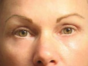 Eyelid Surgery Before & After Patient #2216