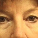 Eyelid Surgery Before & After Patient #2219