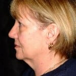 Facelift Before & After Patient #2191