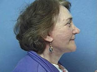 Facelift Before & After Patient #2201