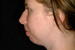 Rhinoplasty Before & After Patient #2222