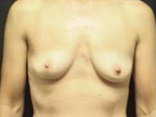 Breast Augmentation Before & After Patient #2229