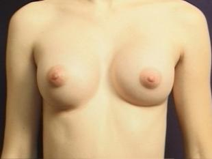 Breast Augmentation Before & After Patient #2234