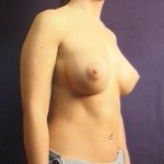 Breast Augmentation Before & After Patient #2239