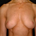 Breast Augmentation Before & After Patient #2244