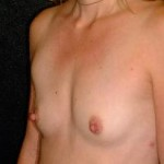 Breast Augmentation Before & After Patient #2252