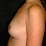 Breast Augmentation Before & After Patient #2270