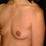 Breast Augmentation Before & After Patient #2275