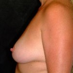 Breast Augmentation Before & After Patient #2285
