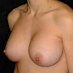 Breast Augmentation Before & After Patient #2294