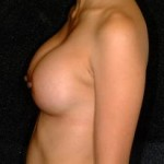 Breast Augmentation Before & After Patient #2306
