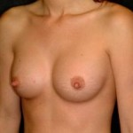 Breast Augmentation Before & After Patient #2311