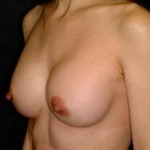 Breast Augmentation Before & After Patient #2321