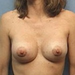 Breast Augmentation Before & After Patient #2345