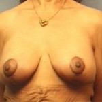 Breast Lift Before & After Patient #2356