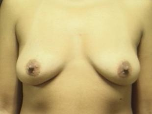 Breast Lift Before & After Patient #2359