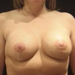 Breast Lift Before & After Patient #2362