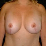 Breast Lift Before & After Patient #2365