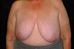 Breast Reconstruction Before & After Patient #2374