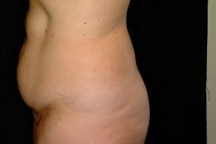 Tummy Tuck Before & After Patient #2387