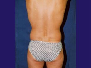 Male Liposuction Before & After Patient #2400