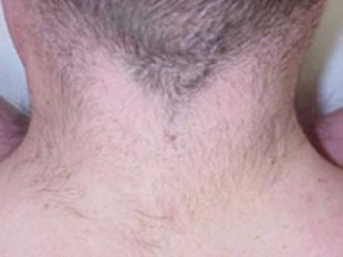 Laser Hair Removal Before & After Patient #2419
