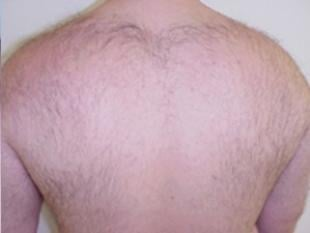 Laser Hair Removal Before & After Patient #2422