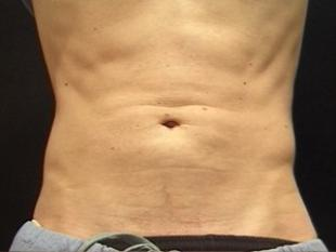 Ab Etching Before & After Patient #2428