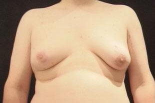 Male Breast Reduction Before & After Patient #2436