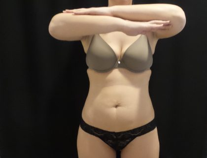 CoolSculpting Before & After Patient #4318