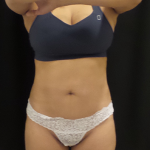 CoolSculpting Before & After Patient #4993