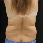 CoolSculpting Before & After Patient #5008