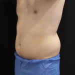 CoolSculpting Before & After Patient #4983
