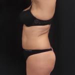 CoolSculpting Before & After Patient #5018