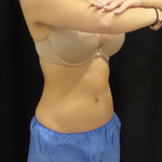 CoolSculpting Before & After Patient #4978