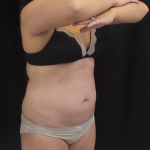 CoolSculpting Before & After Patient #4988