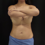 CoolSculpting Before & After Patient #5013