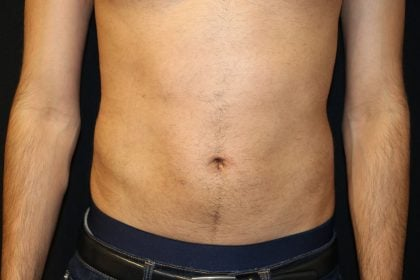 Male Liposuction Before & After Patient #5176