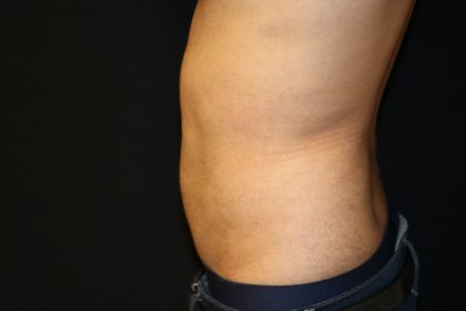 Patient #5176 Liposuction Before and After Photos San Jose