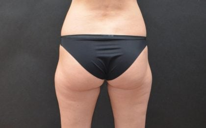 CoolSculpting Before & After Patient #5194