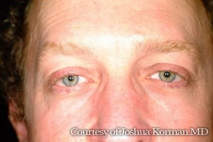 Eyelid Before & After Patient #5434