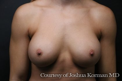 Breast Augmentation Before & After Patient #5469