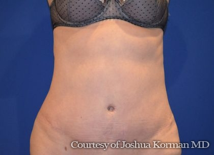 Abdominoplasty Before & After Patient #5590