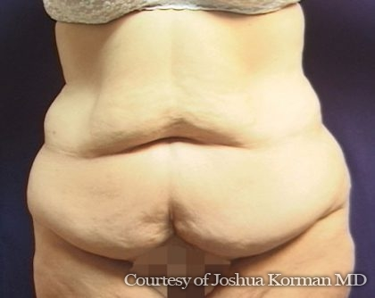 Abdominoplasty Before & After Patient #5598