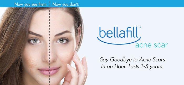 Bellafill San Jose, Dermal Fillers Palo Alto, Smile Line
