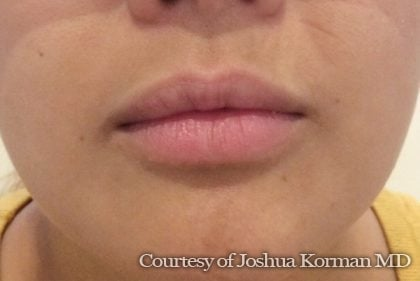 Juvederm / Voluma / Volbella / Kybella Before & After Patient #5753