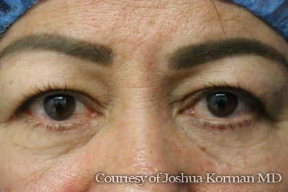 Eyelid Before & After Patient #5787
